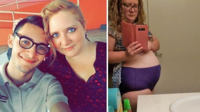 Alami Endometriosis, Perempuan Ini Selalu Dikira Hamil